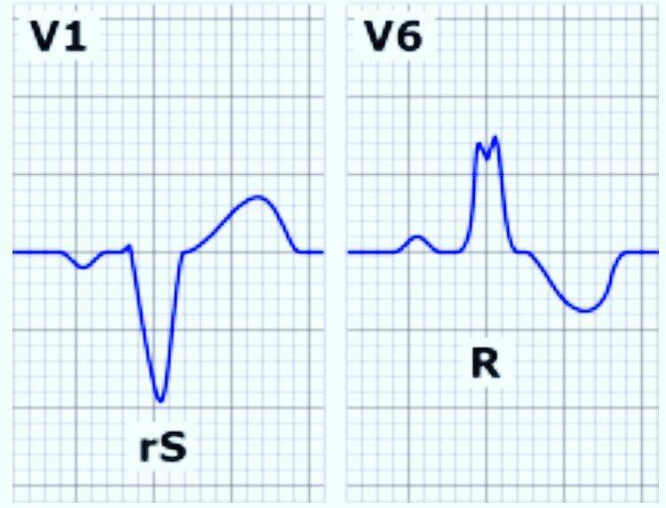 """Anesthesia Analgesia on Instagram: """"The ECG criteria for a"""