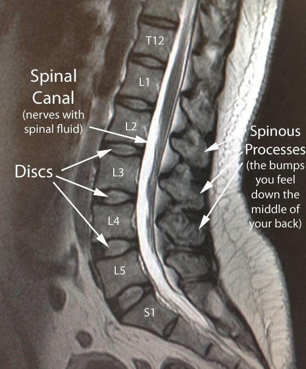 Lumbar Normal Sag Mri W Text Lower Back And Hip Pain Pinterest
