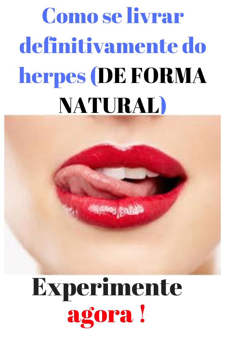Herpes boca pomada na