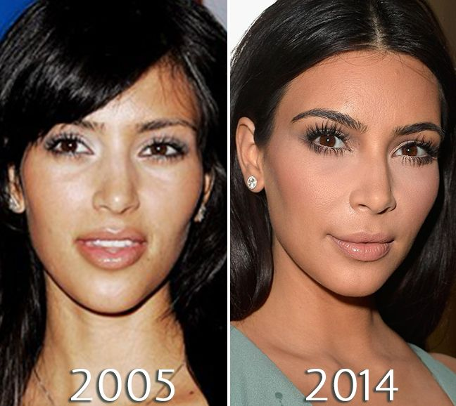 Kim Kardashian Eyes Before And After Photos Nose Job