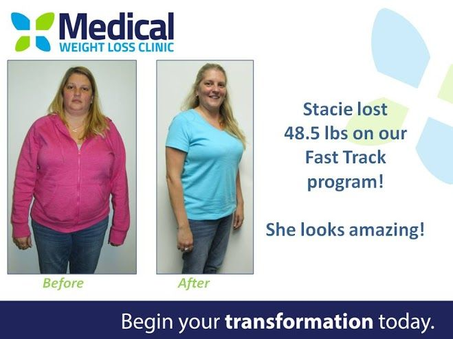 Stacie lost 48.5pounds on our Fast Track program! •••••••••••••••••••••••••••••••••••••••••••••• Is the Fast Track program for you? Book your FREE consultation with us today! #TransformationTuesday