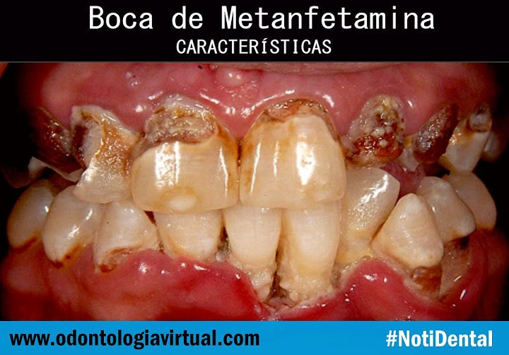 NOTIDENTAL: Boca de Metanfetamina. Características | Ovi Dental