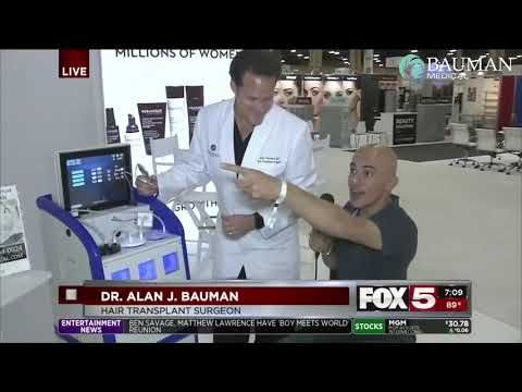 Video Live Review Of Smartgraft Fue Device Dr Alan Bauman Discusses Why Is
