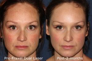 Best Before And After Dermatology Treatments In San Diego Clderm Laser Treatment Cosmetics Laser Dermatology