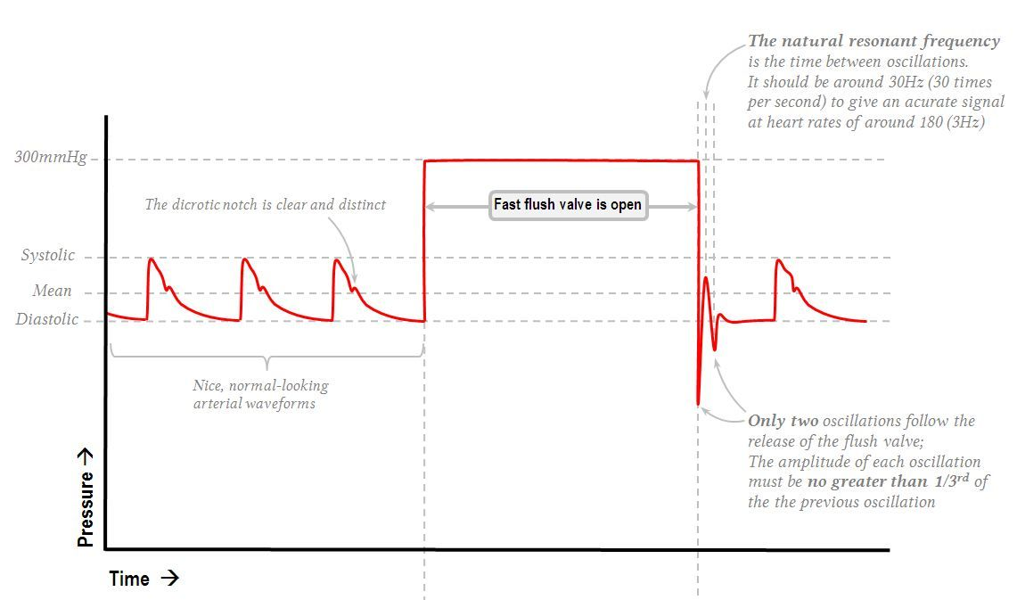 Art Line Underdamped : Normally damped arterial line waveform nursing pinterest