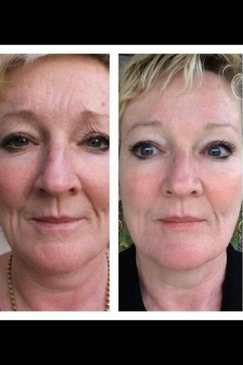 Before/After. Amazing results! www.KeriLDavis.Ne Before/After. Amazing results! www.KeriLDavis.Ne... -