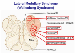 pica stroke | pica stroke what is it lateral medullary