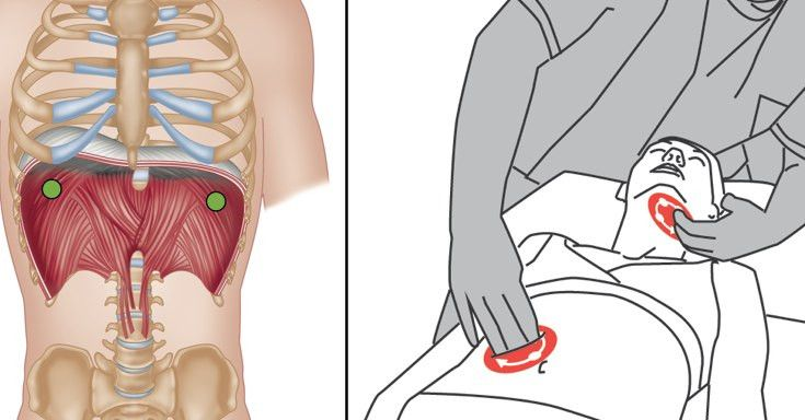 The psoas gland massage - 1 part 7