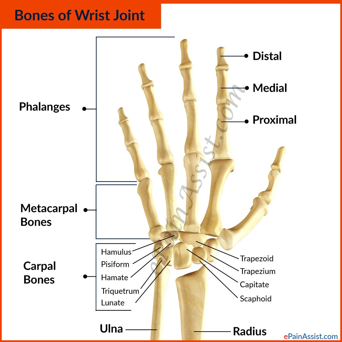 Bones of Wrist Joint | Ouch...Wrist Pain! | Pinterest