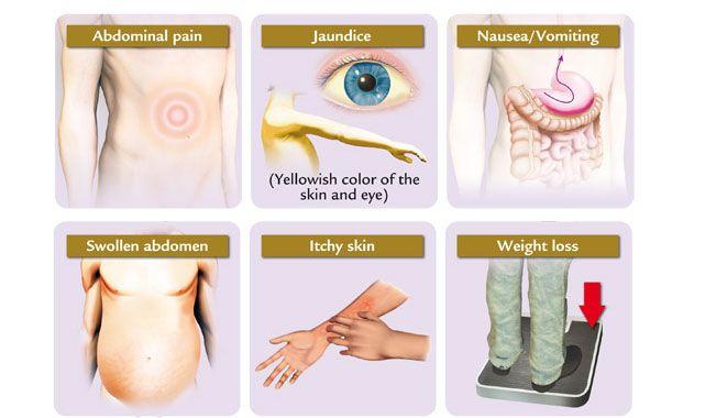 http://liverbasics.com/liver-pain.html Liver pain help and advice ...