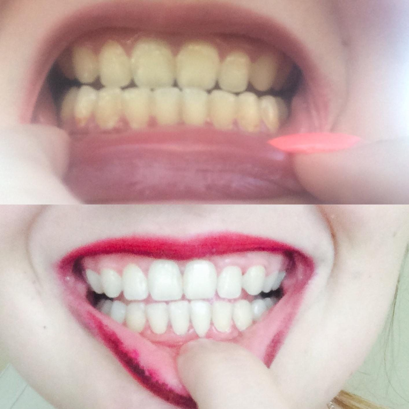 Tooth whitening paste: reviews 64