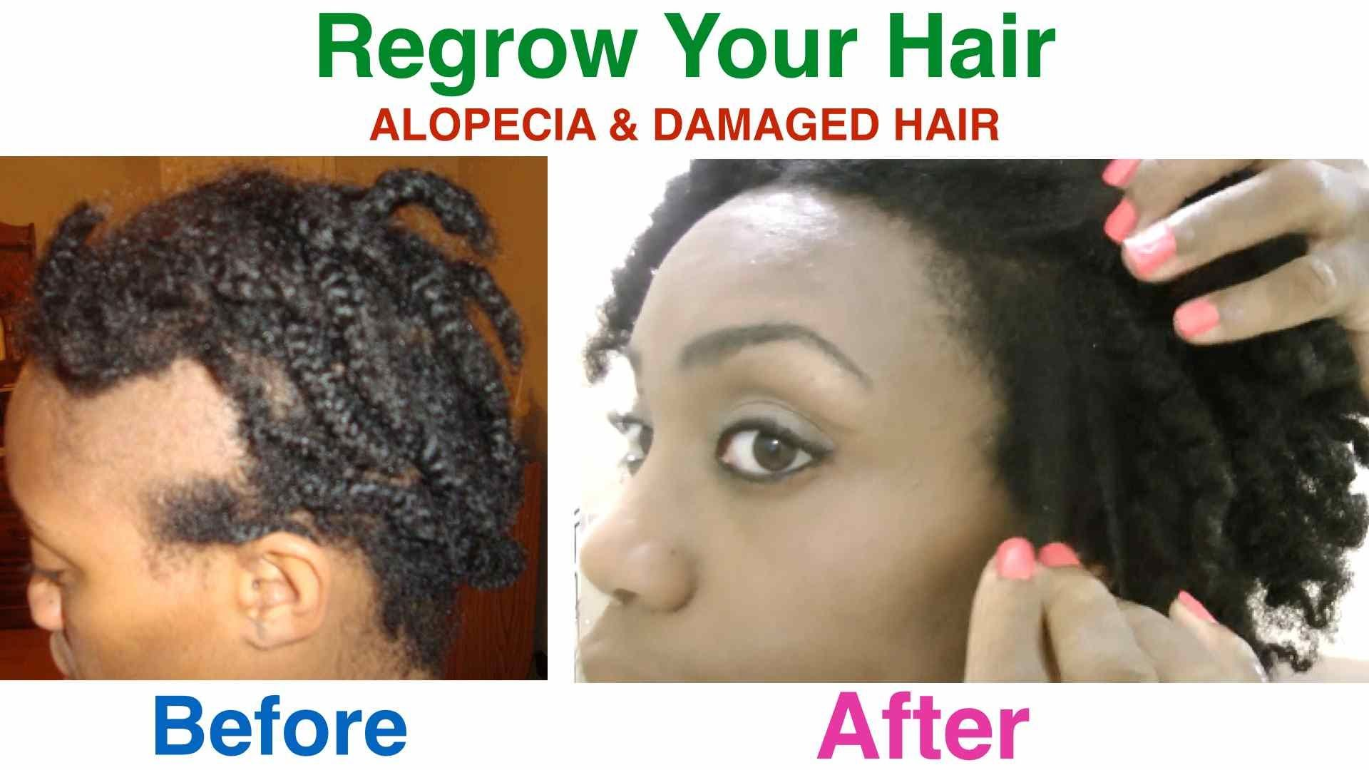 I Cured My Alopecia Areata & Damaged Hair And I Share My
