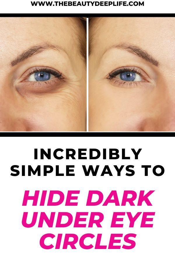 Incredibly Simple Ways To Hide Dark Circles | Hide dark ...