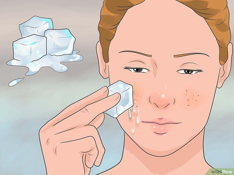 45f9e94e9f17f86e29b2849dd65c6591 - How To Get Rid Of Huge Pimple Under Skin