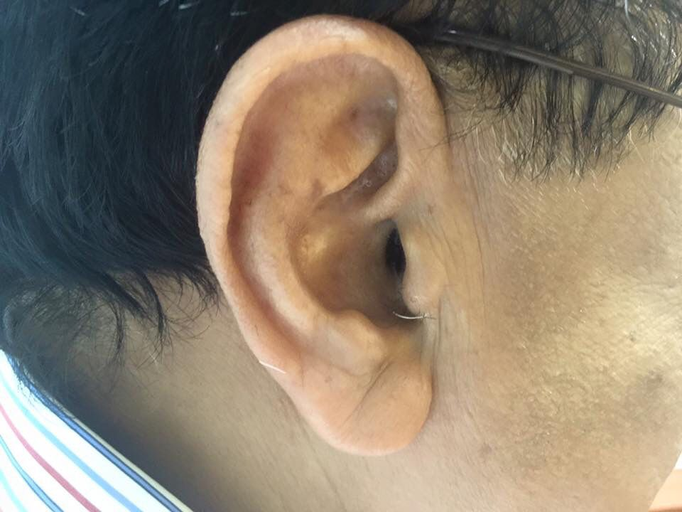 Lyric lyric hearing aid problems : Can you spot the hearing aid in this persons ear? That's Starkey ...