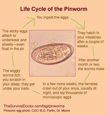 How to Treat Pinworms: FAQs   Survival, Posts and Life cycles