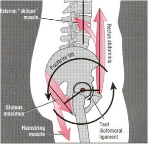 What your pelvis may be telling you | Back pain | Pinterest | Tilt ...