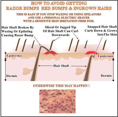 Prevent Ingrown Bikini Hair