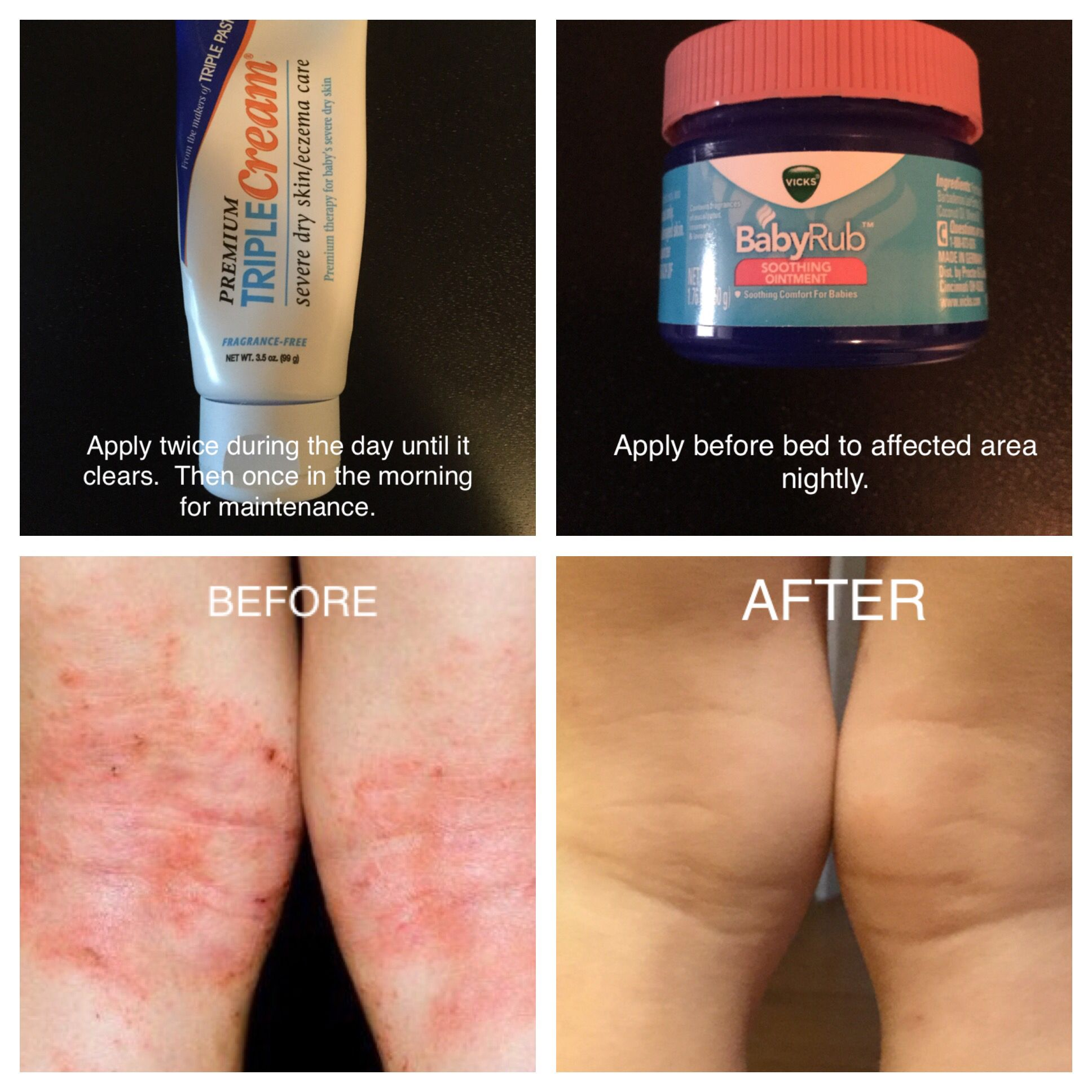Amazing Releif For Eczema Hoping This Helps Anyone Else Affected With Eczema My Little Guy Had Also Pic Eczema Remedies Eczema Treatment Dry Skin Eczema