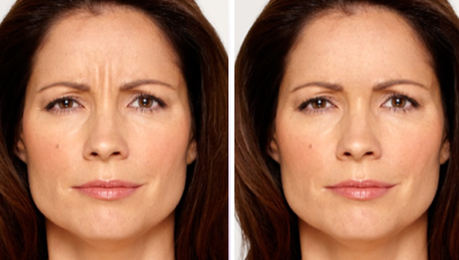 Preview How You Will Look With Botox Botox Botox Injections Botox Cosmetic