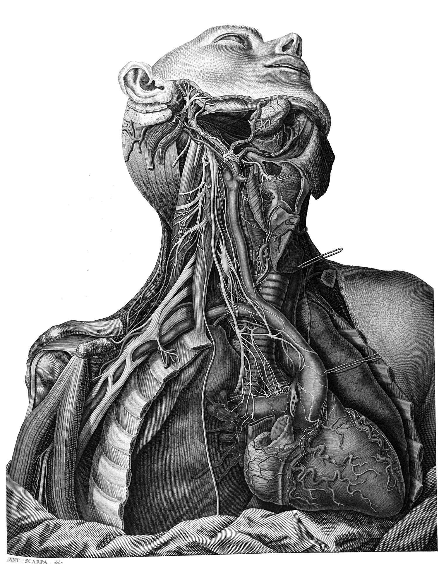 Sull' aneurisma. Riflessioni ed osservazioni anatomico-chirurgiche      Antonio Scarpa, 1804