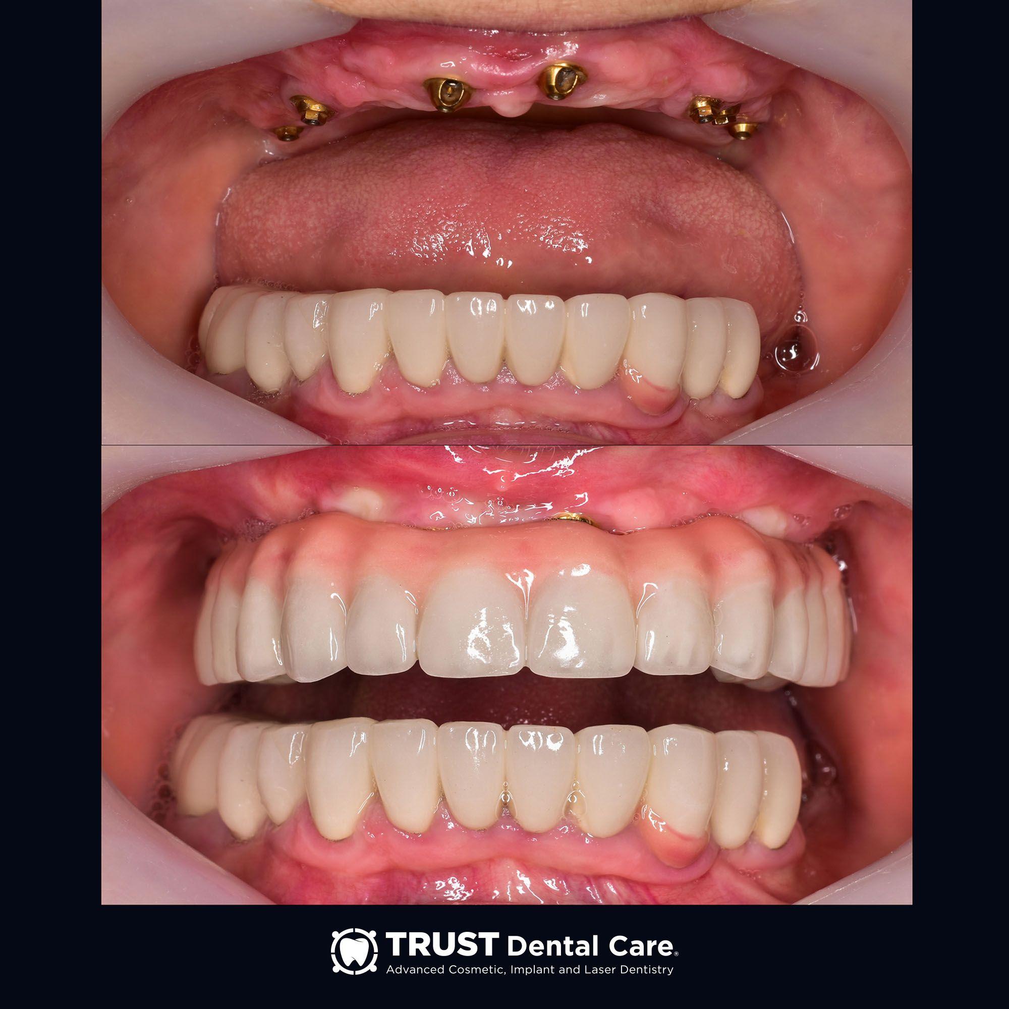 Best Dentist In Tijuana Enhance Your Smile In A Single Visit Dentist In Dentist Best Dentist