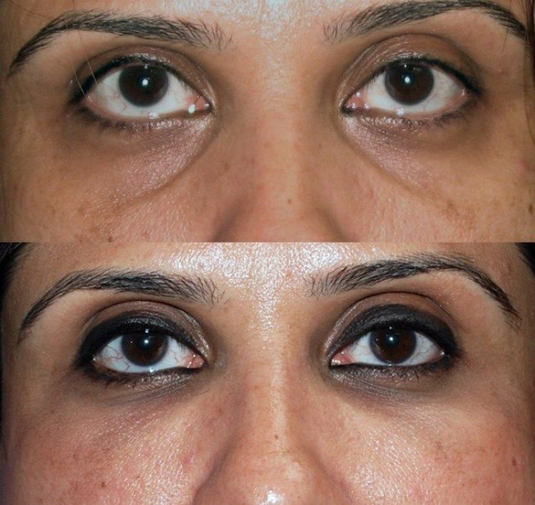How to get rid of sunken eyes with images sunken eyes
