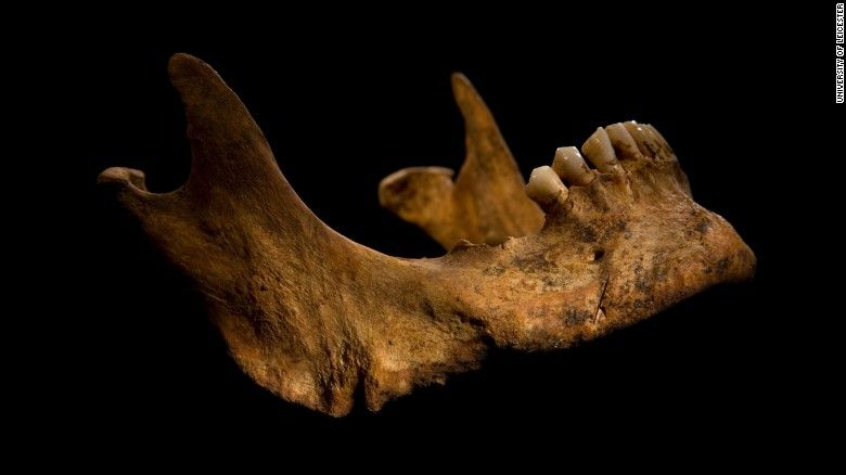 The remains of King Richard III. The lower jaw shows a cut mark caused by a knife or dagger. The archaeologists say the wounds to Richard's head could have been what killed him.