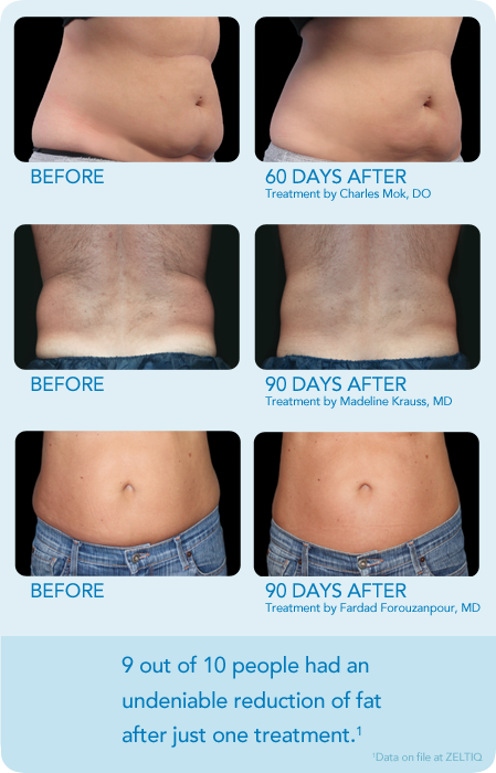 Pin By Coolsculpting Complete Center Of Raleigh On