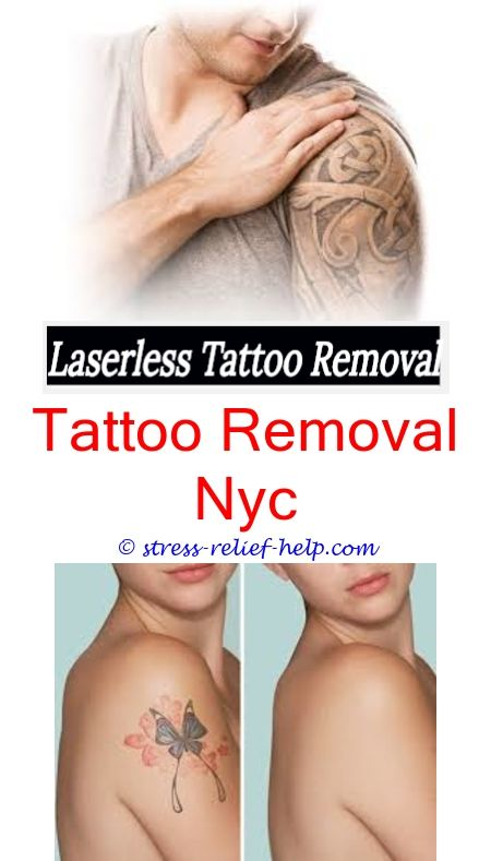 Laser Tattoo Removal Near Me | Laser tattoo, Tattoo removal and ...