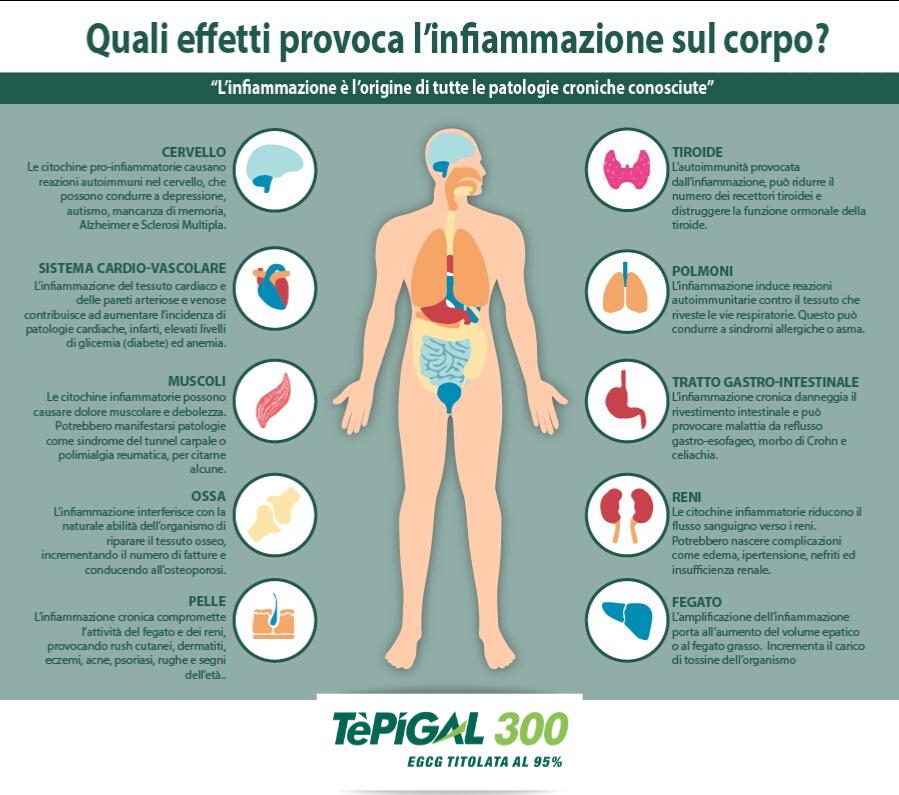 TEPIGAL 300, Tè Verde 95% Egcg: Stimola il Metabolismo   Spedizione gratuita co…