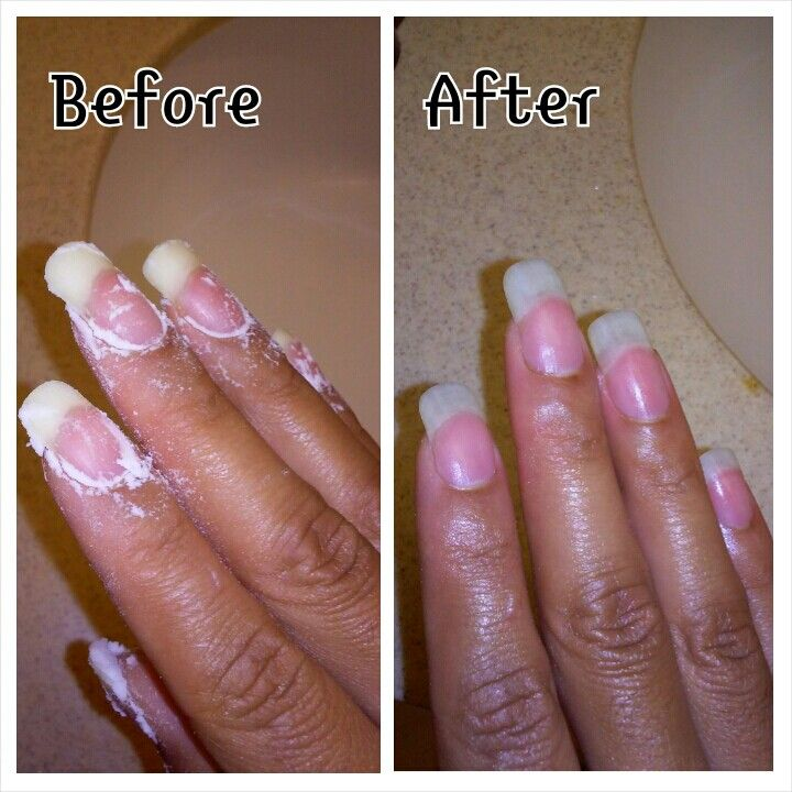 Get your nails white with DIY bleach. Kill fungus and bacteria ...