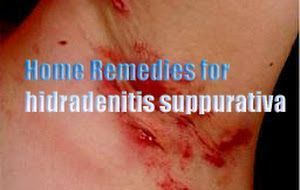 Home Remedies for hidradenitis suppurativa , All Causes, Symptoms, and Treatment of hidradenitis suppurativa…