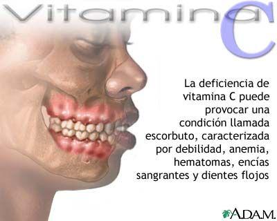 Enfermedades por falta de vitamina C.