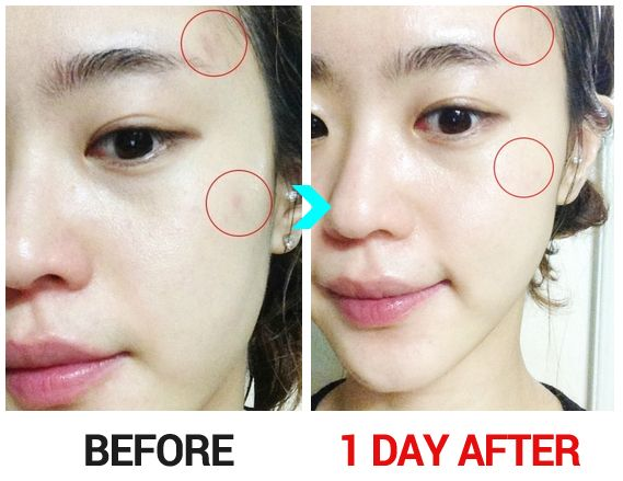 To Of Overnight Acne Rid How Get Chin