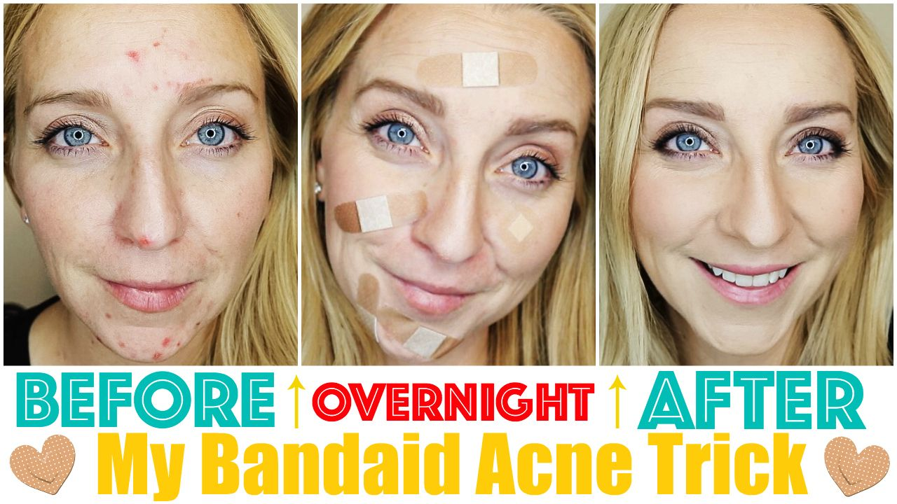 How To Get Rid Of Acne Fast Overnight With My Band Aid Trick It Really Works And Will Help Heal Y Acne Cure Overnight Acne Remedies How To Get Rid Of