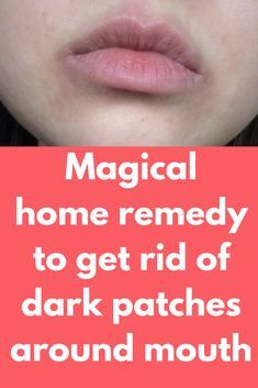 Magical home remedy to get rid of dark patches around mouth