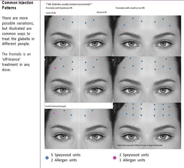 Forehead Botox Injection Pattern Botox Injection Sites Aesthetic Dermatology Botox Face