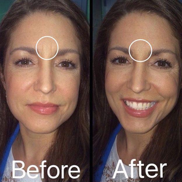 Scar & Wrinkle Filler | Makeup in 2019 | Wrinkle filler