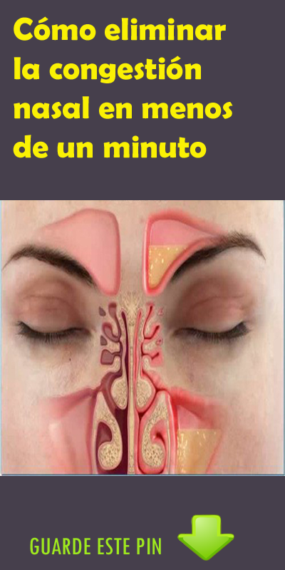 La forma más rápida de deshacerse de la congestión nasal