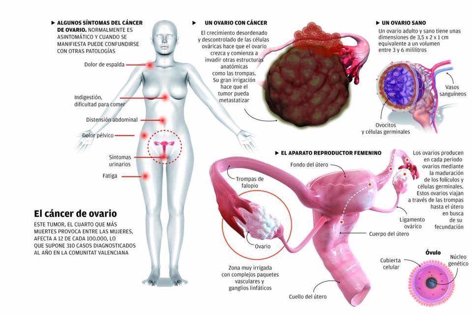 Remedios Caseros Como Eliminar Quistes En Los Ovarios En 12 Horas Pin De Nella Capitaine Drouaillet En Salud Patologia Sana Y Salud