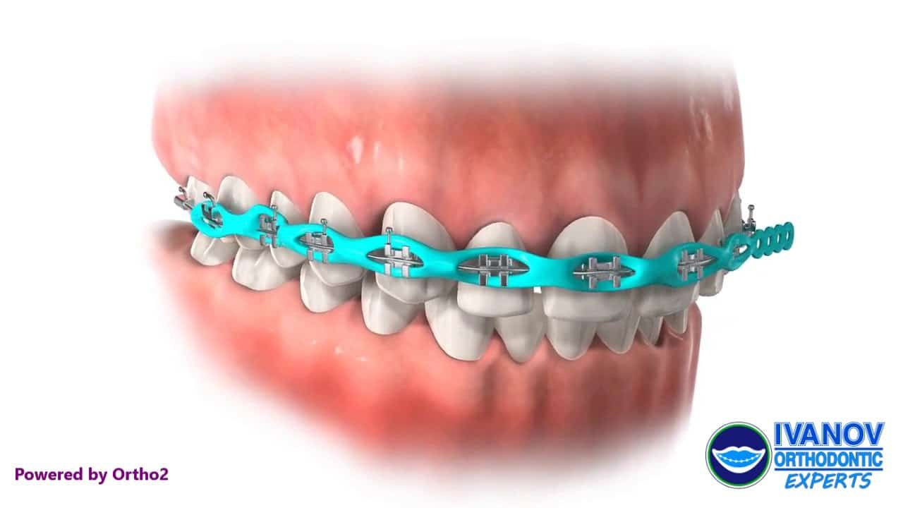 How Long Does It Take To Put Braces On Dental Braces Teeth Care Power Chain Braces