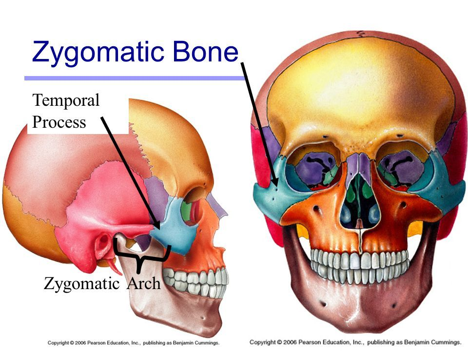 Zygomatic Bone Temporal Process Sciences Pinterest Anatomy