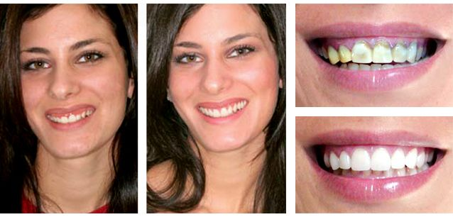Lake Worth Florida Dentist Health Dr Suarez Bimbo