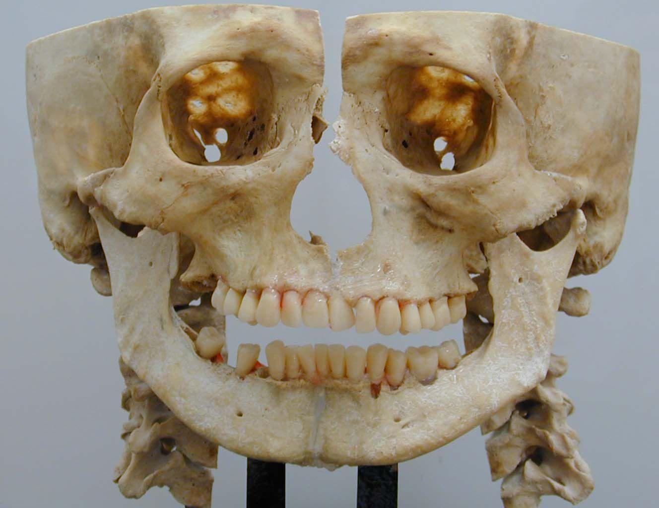 Visión panorámica de las estructuras maxilofaciales , así las vemos ...
