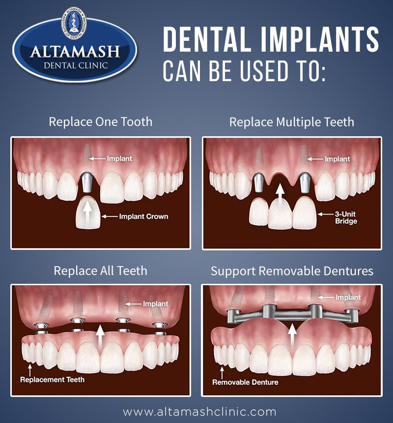 Dental Implants are an option for people with missing