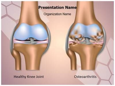 Knee joint osteoarthritis powerpoint presentation template is one knee joint osteoarthritis powerpoint template is one of the best powerpoint templates by editabletemplates toneelgroepblik Choice Image