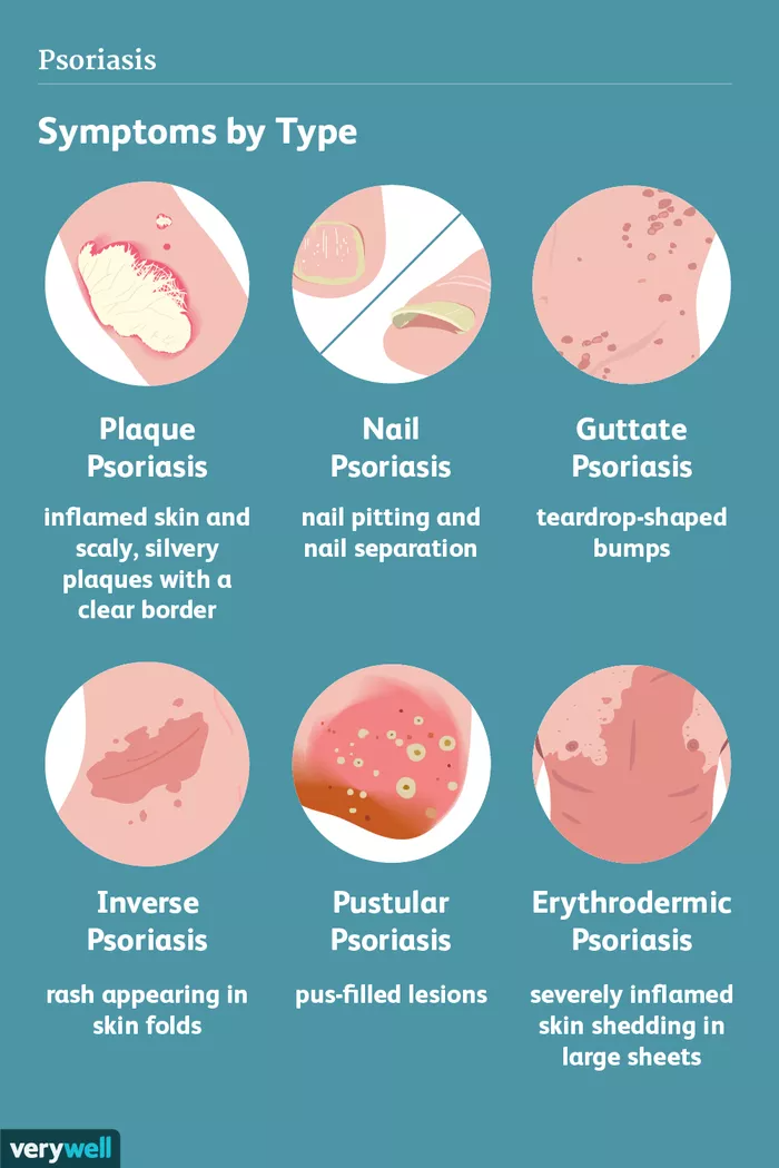 complications of plaque psoriasis