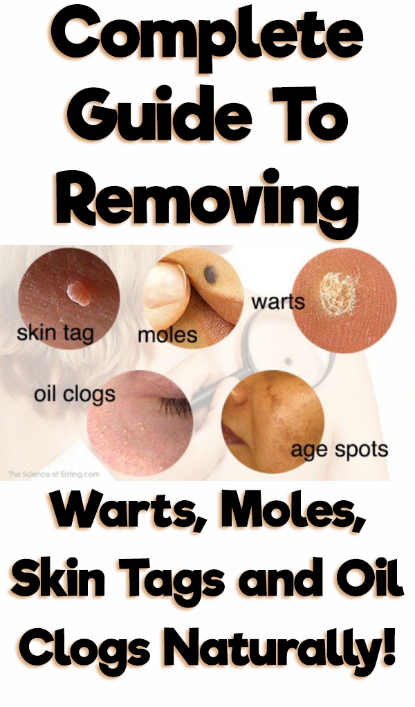 A Complete Guide To Removing Warts, Moles, Skin Tags and Oil