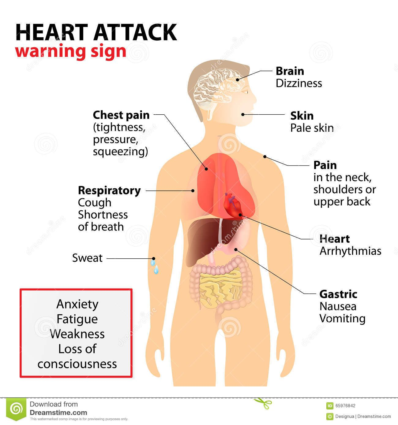 Heart attack symptoms signs human silhouette highlighted internal heart attack symptoms signs human silhouette highlighted internal ccuart Gallery